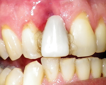 A five-week period was allowed for the site to heal, at which time a deep depression was noted in the gingival labial region.