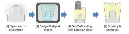 Steps in the CAD/CAM manufacturing technique.
