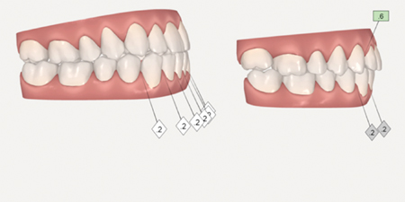 A: Pre-surgical setup with decompensation using 8 trays. Planned surgery is a 2-piece LeFort expansion and advancement. B: Immediate postoperative setup. Surgical guides are prepared using the scanned models.