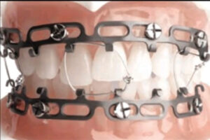 Application of screw retained arch bars.
