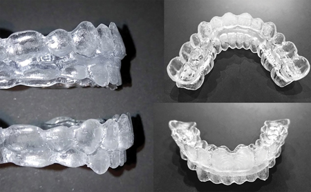 CAOS trays: a CAD/CAM designed acrylic splint with complete occlusal coverage that can be used in multisegmental LeFort osteotomies.