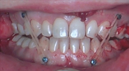 Insertion of temporary orthodontic anchor devices (TADS).