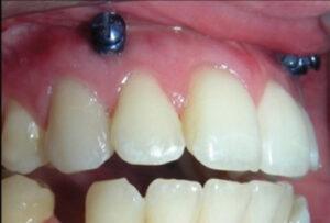 Insertion of Maxillomandibular fixation (MMF) screws.