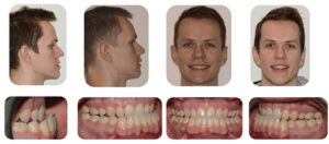 Post-surgical elastics used for maintenance of the correction occlusion.