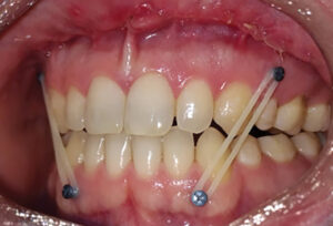 Post-surgical maintenance of occlusion using TADs and Elastics.