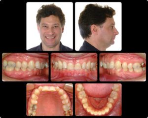 Pretreatment malocclusion.