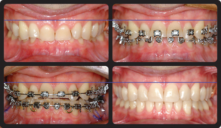 Vertical discrepancy correction with orthodontic intrusion.