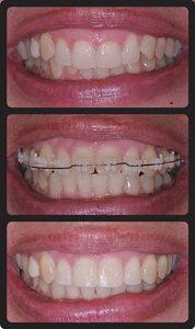 Orthodontic intrusion of maxillary incisors and provisional composite restoration. A. Pretreatment. B. Orthodontic Intrusion with equal movement of the gingival margins apically. C. Post treatment with placement of composite restortions.