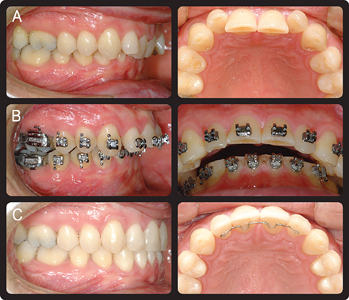 "Dental ""decompensation"" in preparation for orthognathic surgery. A. Pretreatment. B. Pre surgical overjet preparation of 9mm. C. Post treatment."