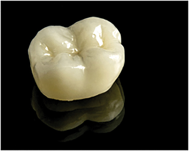 IPS e.Max Lithium Disilicate Glass Ceramic Restoration.