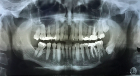 Panoramic radiograph showing a demarcated, partially-corticated unilocular radiolucency at the left mandible associated with an impacted tooth 3.8.