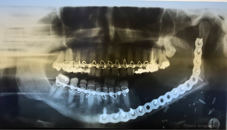 Panoramic radiograph post-resection.