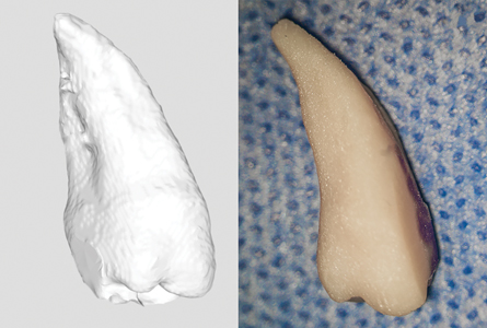 2A. STL file of the segmented 3-D replica. B. Replica of tooth No. 1.