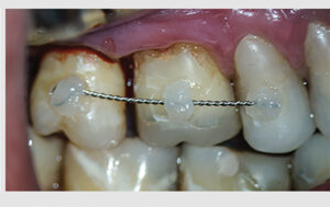 No. 1 transplanted into the alveolar socket of No. 2 (recipient site) and being stabilized with an orthodontic wire splint and composite resin from No. 4 to 2