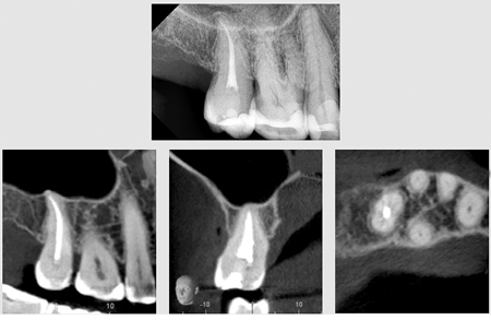4A. Periapical radiograph 36 months after the procedure. B. CBCT at 36 months, sagittal plane. C. Coronal plane. D. Axial plane. Note a new buccal cortical plate, maxillary sinus floor plate, and absence of mucositis.