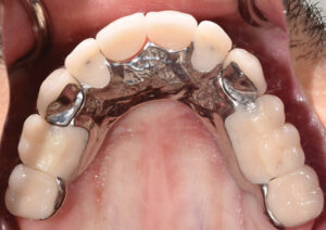 Occlusal view of maxillary arch, post treatment. RPD connects to crowns with ball attachments.