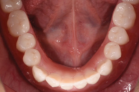Occlusal view of mandibular arch post treatment with the overdenture in place.