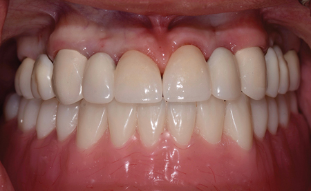 Intraoral view of maximum intercuspation, post treatment.