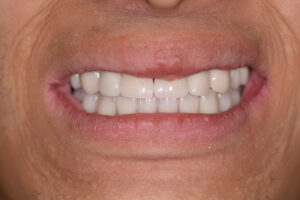 Patient smiling, post treatment.