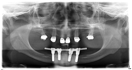 Panoramic radiograph at the completion of treatment showing the bar for mandibular implants and the crowns for maxillary teeth.