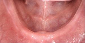 Occlusal view of mandibular arch.