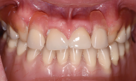 Intraoral view with existing prostheses at the time of initial consultation.