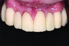 Maxillary transitional fixed partial dentures.