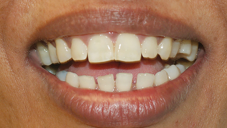 Verbal probing indicated that she was unhappy with the esthetics of her smile because of the 'spacing' in between her teeth.