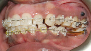 Treatment was performed with orthodontics using fixed appliance therapy and TADs (temporary anchorage devices).
