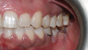 The missing teeth in the mandible were replaced with a tooth supported removable partial denture.