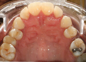 Secondary clinical findings included tooth wear and moderate horizontal bone loss.
