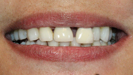 The space between teeth 11 and 21 appeared to be widening over time and she wanted options for 'closing the gap'.