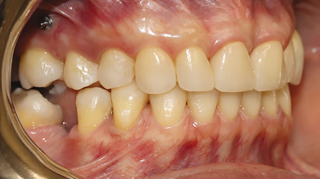 The patient elected not to replace her missing posterior teeth after completion of the anterior crowns.