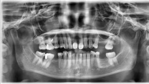 Overall, an improvement in periodontal health was characterized by apparent regeneration of bone when comparing pre and post periapical radiographs of teeth 11 and 21 (Figs. 15,16) and the pre and post panoramic radiographs. (Figs. 17,18)