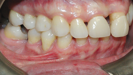 Teeth 37,47,27 and 21 were drifted and supra-erupted contributing to an uneven occlusal plane and poor esthetics