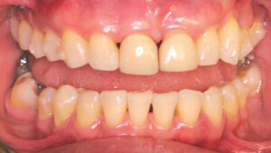Active orthodontic treatment was completed after 30 months in consultation with the prosthodontist when the treatment objectives were achieved