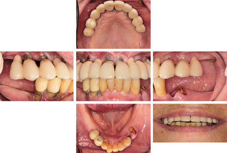 Intraoral and extraoral photos – peri-implantitis in maxilla and severe periodontitis in mandible.