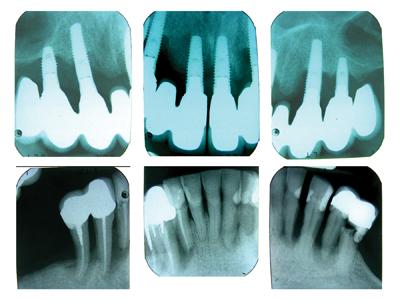 Severe peri-implant marginal bone loss in maxilla. Severe periodontal bone loss in mandible with suspected endodontic-periodontal lesions and caries.