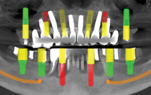 Simulated implant plan with 6 implants each in the maxilla and mandible, with maximum anteroposterior distribution.