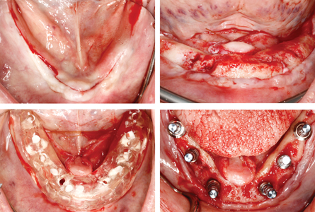 Staged mandibular clearance, and then alveoplasty and implant placement.