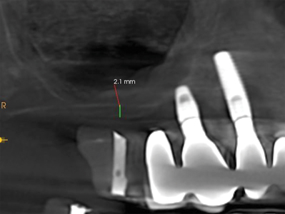 Pneumatization of the maxillary sinus reduces the available bone volume for implant placement. .