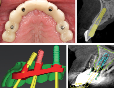 Implant trajectory for traditional bridgework should follow the prosthetic tooth confines, but should instead be positioned lingually for a bar overdenture.