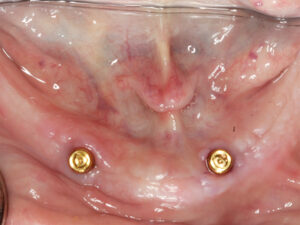 Implant trajectories should be as parallel as possible when planning an unsplinted implant-retained overdenture.