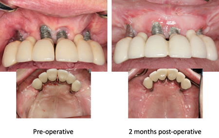 Initial and 2-month post-operative follow-up showing an increase in width of the keratinized tissue and deepening of the maxillary labial vestibule.