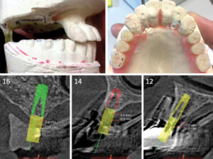 Prosthetic tooth wax-up and post-graft CBCT scan showing sufficient inter-occlusal space for a bar overdenture.