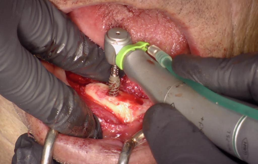 Surgical phase – Mandible.