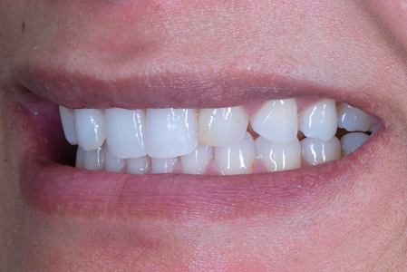 Upon examination, she presented with a Class II Division II malocclusion with a slightly retruded and canted position of her central incisors.