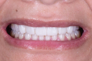 As the treatment was mostly additive, an intra-oral mockup was fabricated to evaluate aesthetic parameters including tooth colour, position, size, shape and tissue support.