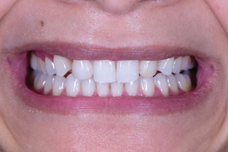 A duplicate cast of the wax-up was sent to the periodontist for guidance on tissue levels. After aesthetic crown lengthening and gingival sculpting was completed, the tissue was allowed to heal for six weeks (Figs. 8,9) prior to in-office whitening and the start of the restorative treatment.