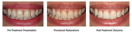 Patient presenting with very high esthetic expectations: The provisional restoration is often the only route to translate the subjective esthetic expectations of shape to an objective possible result prior to fabrication of the final restorations (Porcelain Veneers #1.1 and 2.1